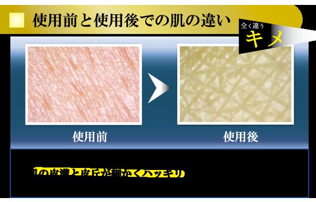 使用前と使用後での肌の違い キメ